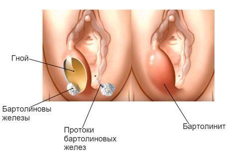 бартолинит лечение