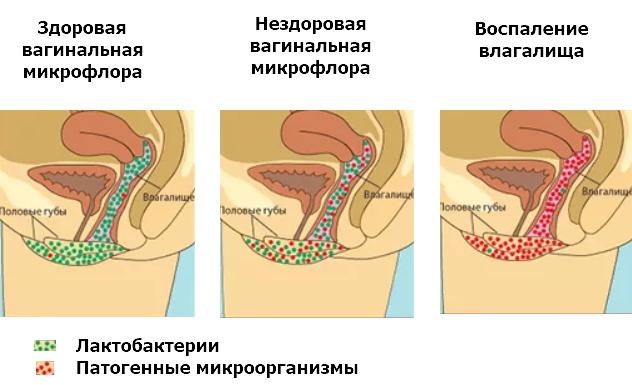 дисбактериоз. влагалища
