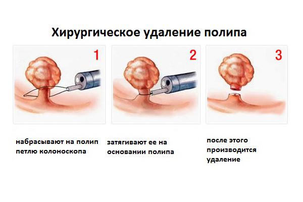 Удаление полипов шейки матки в Москве стоимость