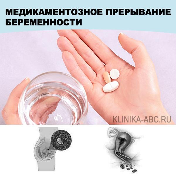 Как сделать медикаментозный аборт цена